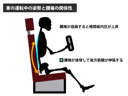 車の運転中の姿勢と腰痛の関係性