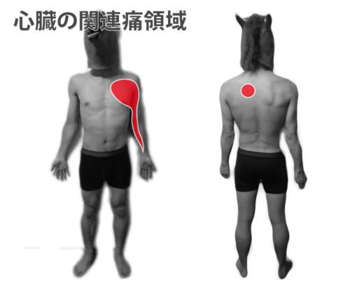 心臓の関連痛領域