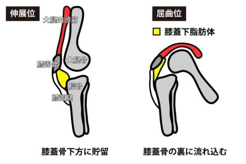 膝蓋下脂肪体|側方1