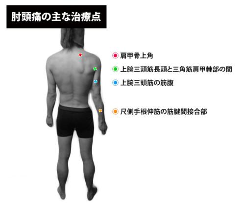 肘頭痛の主な治療点