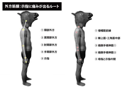 外方筋膜:示指の痛み①