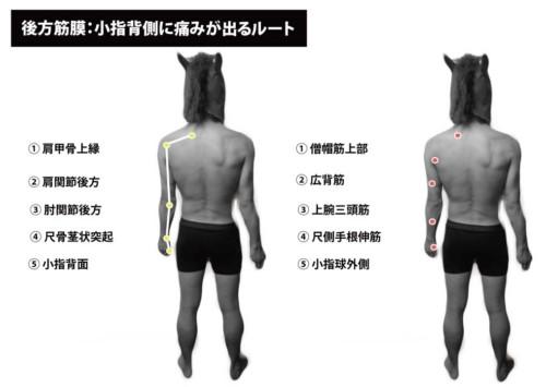 後方筋膜:小指背側の痛み