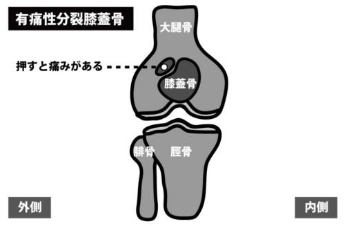 有痛性分裂膝蓋骨