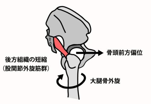 鼡径部痛の原因:後方組織の短縮