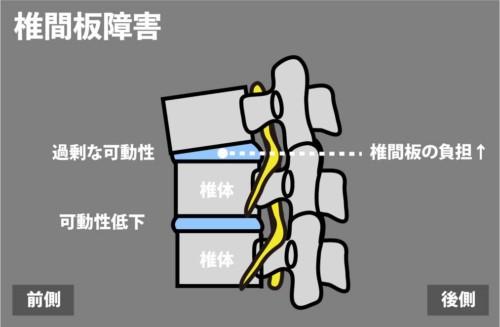 椎間板障害