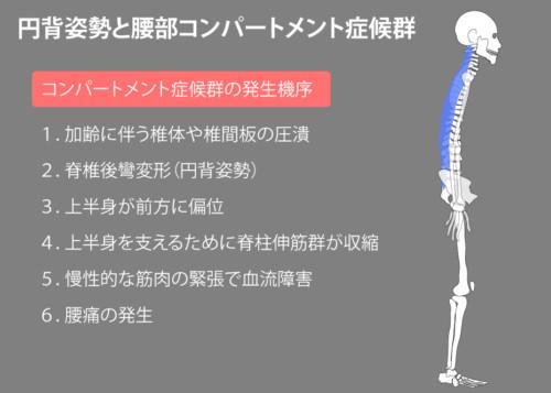 円背姿勢と腰部コンパートメント症候群