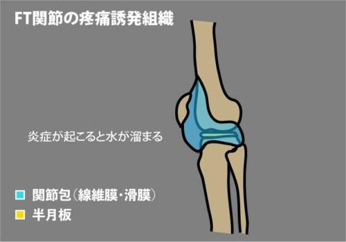 FT関節が痛い理由