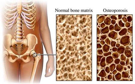 Vitaminas do Complexo B, Homocisteína e Osteoporose em Homens e Mulheres Idosos