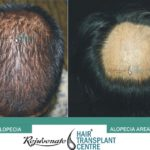 Hair Transplant Alopecia and Alopecia areta