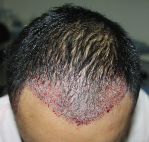 How Hair transplant can change life of a person - Result 3