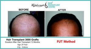 FUT Hair Transplant in India - Rejuvenate