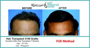 Hair Transplant in India front result 3150 graft - Rejuvenate