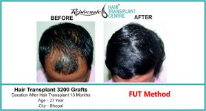 Hair Transplant in India Top Result 3200 graft - Rejuvenate