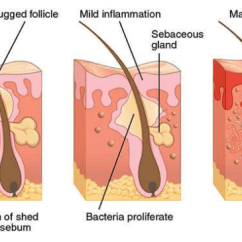What Causes Acne Diagram Dish Turbo Hd Wiring Rejuvimed Scars Is Not Caused By Dirty Skin Or Poor Hygiene Dirt On Your Does Cause However Keeping Clean And Pores Open May Help The