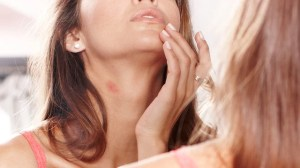 How to Get Rid of a Hickey Fast with Natural Home Remedies by Anna Steve