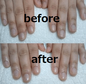 before-afterの写真