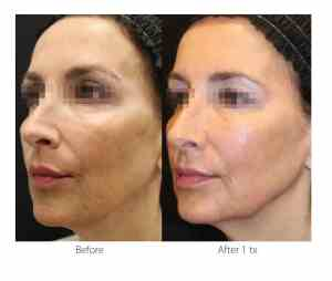 ClearLift-laser-Calgary