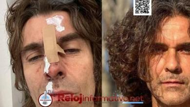 "Photo of La primera imagen del cantante Liam Gallagher tras ""caer de un helicóptero"""