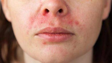 Photo of Uso prolongado de mascarillas puede generar lesiones en la piel