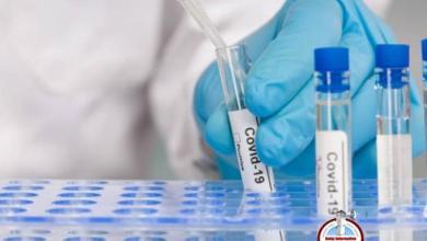 Photo of Cinco muertes y 788 nuevos casos de coronavirus se reportan este miércoles