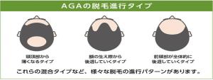 AGAの進行タイプ