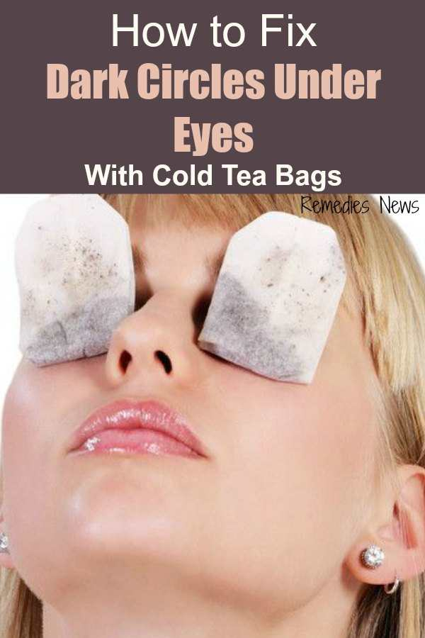 How to Use Tea bags for Dark Circles Under Eyes