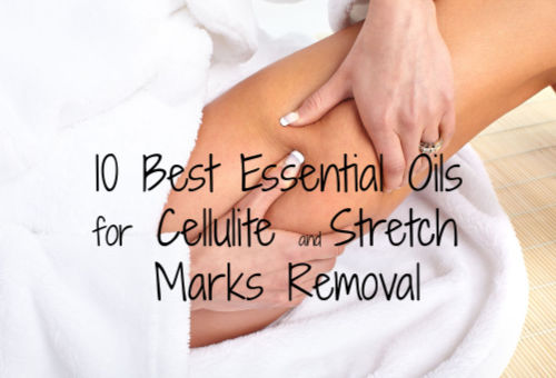 10 Best Essential Oils for Cellulite and Stretch Marks Removal