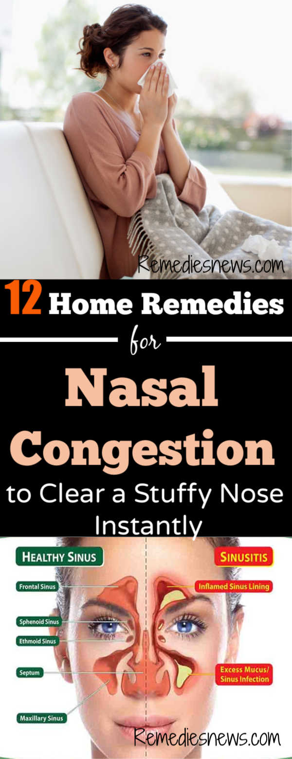 12 Home Remedies for Nasal Congestion to Clear a Stuffy Nose Instantly