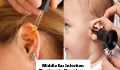Middle ear infection treatments, symptoms, and causes.Find here best home remedies to get rid of ear infection fast.