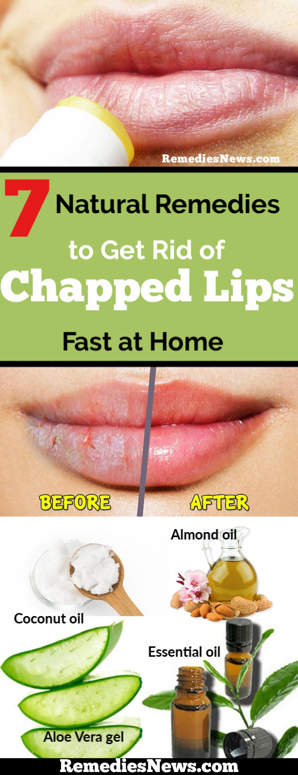 7 Natural Remedies to Get Rid of Chapped Lips Fast at Home
