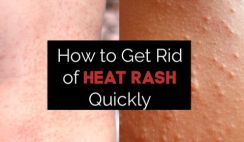 How to Get Rid of Heat Rash Quickly – 9 Remedies That Work