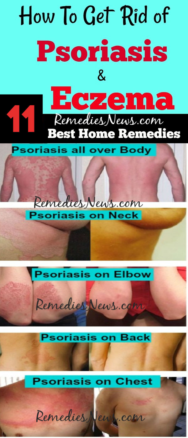 11 Best Home Remedies to Get Rid of Psoriasis Permanently