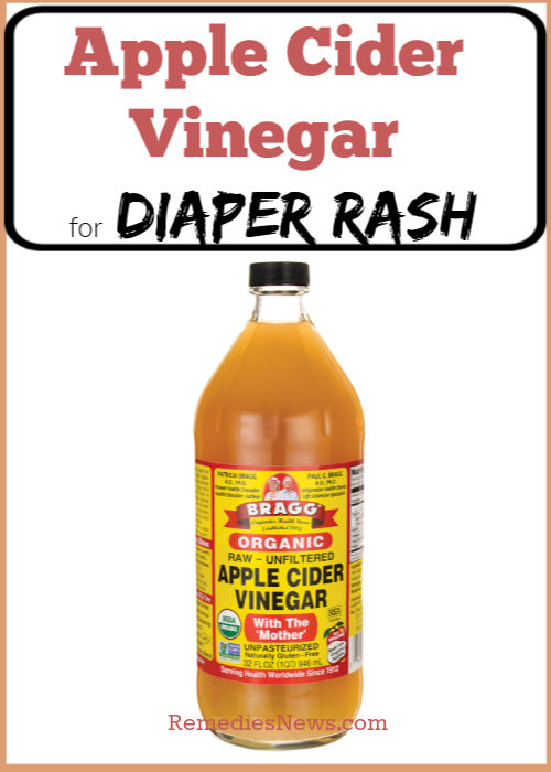 11 Natural Remedies To Get Rid Of Diaper Rash In 24 Hours