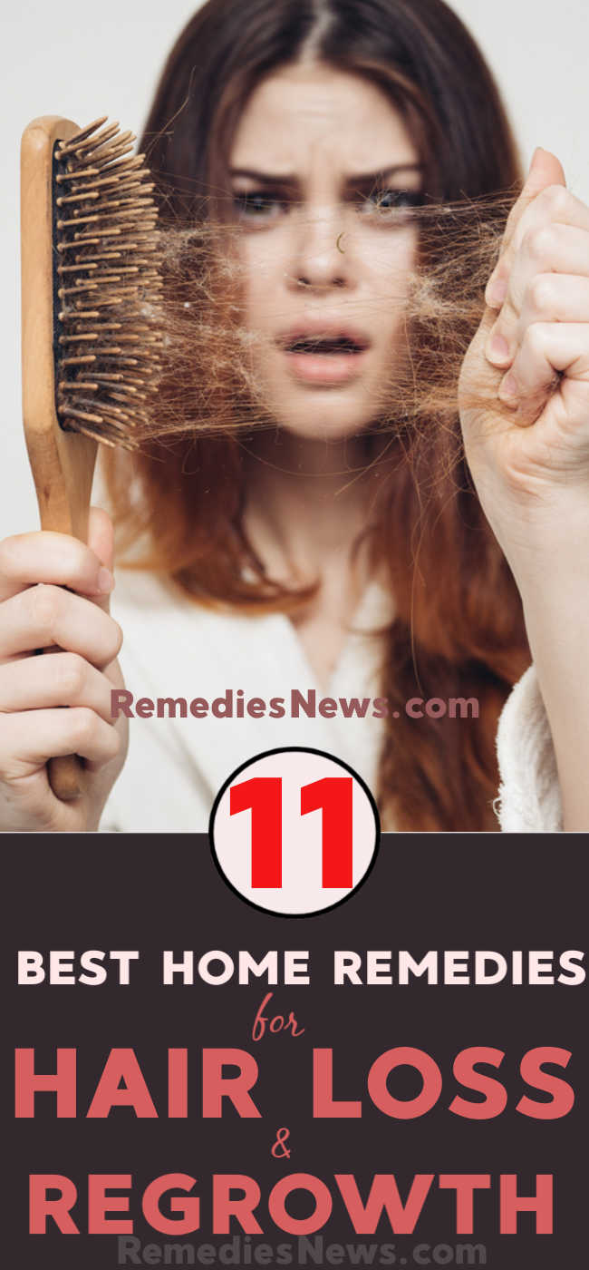 Natural Remedies for Hair Loss: 11 Best Treatment for Hair Fall and Regrowth