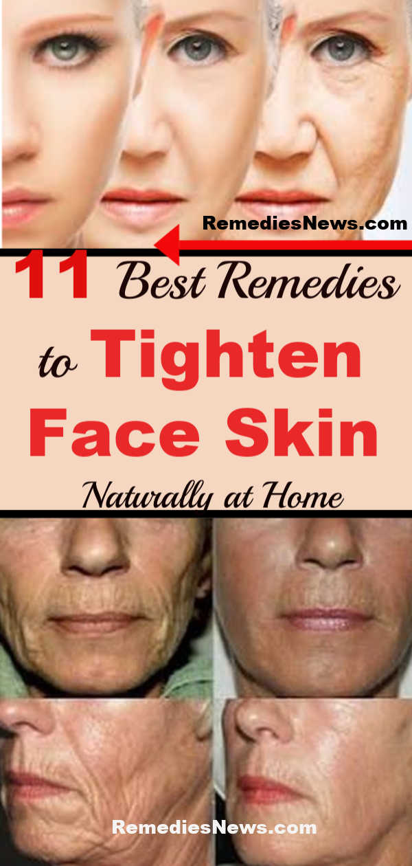 11 Best Remedies to Tighten Face Skin Naturally at Home