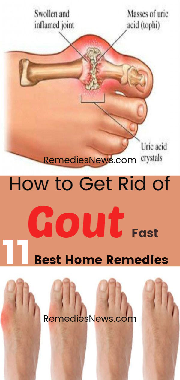 How to Get Rid of Gout Fast with 11 Best Home Remedies