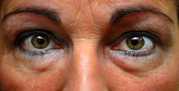 Eliminar bolsas de ojos