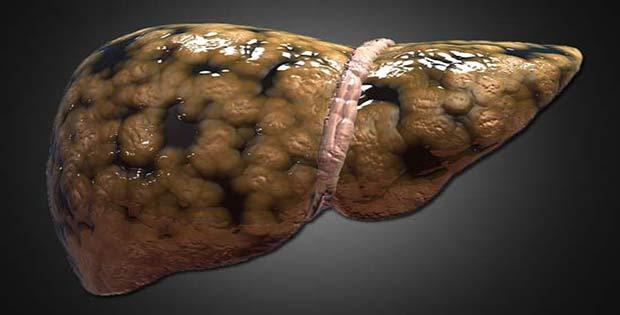 El hígado graso