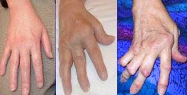 El artritis