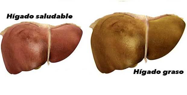 Hígado dañado