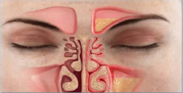 Descongestionar la nariz