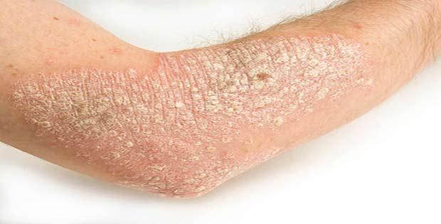Qué es la psoriasis