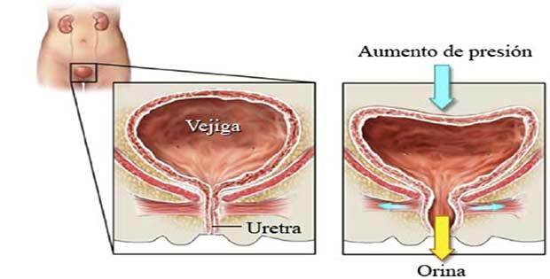 Lo que es la incontinencia urinaria