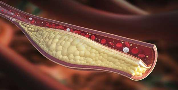 Como limpiar arterias