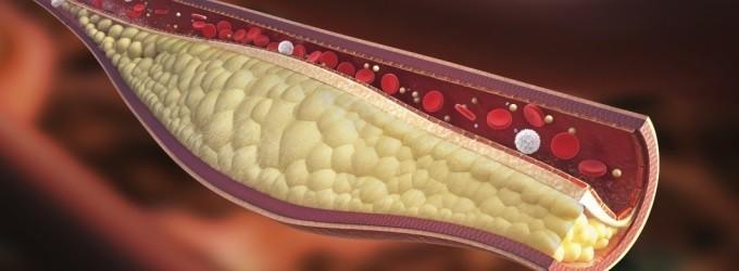 Canela con Miel para Bajar el Colesterol