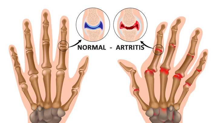 Canela con Miel para la Artritis