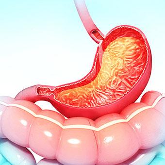 Canela para Gastritis