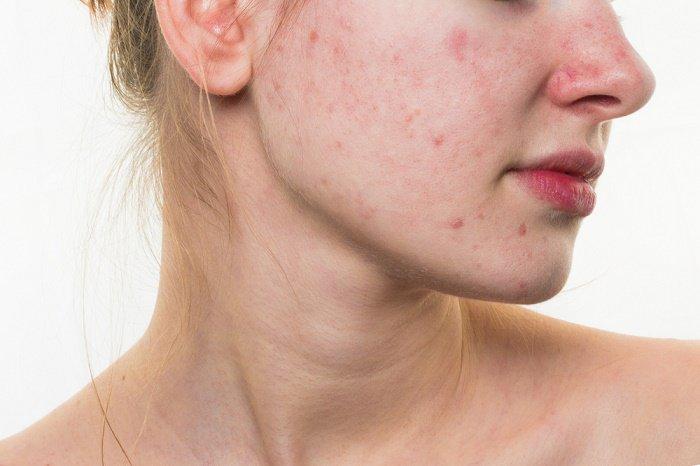 Canela molida y miel para el acné