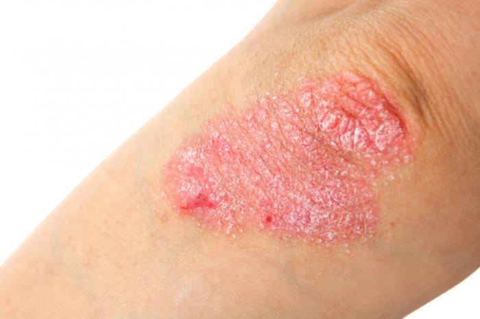 Cómo eliminar la Psoriasis