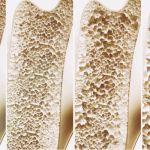 Remedios naturales para la osteoporosis